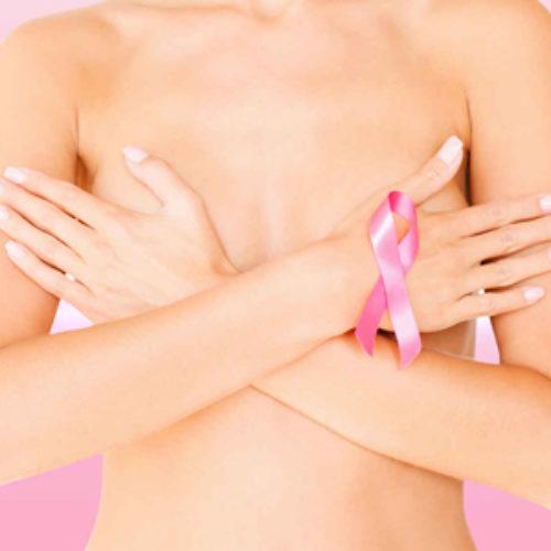 Charla para la comunidad institucional: prevención de cáncer de mama y cuello uterino